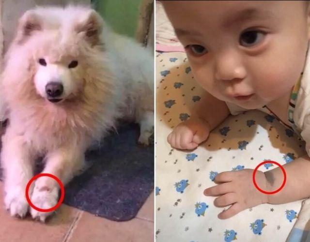 reno birthmark