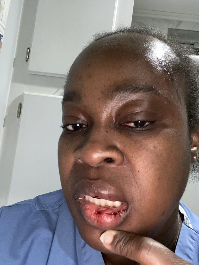 A woman beaten by a tenant